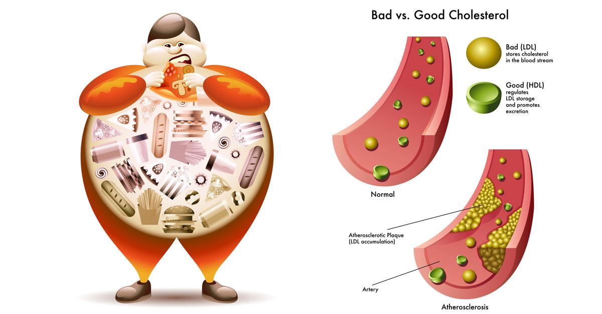 Lipid máu là gì