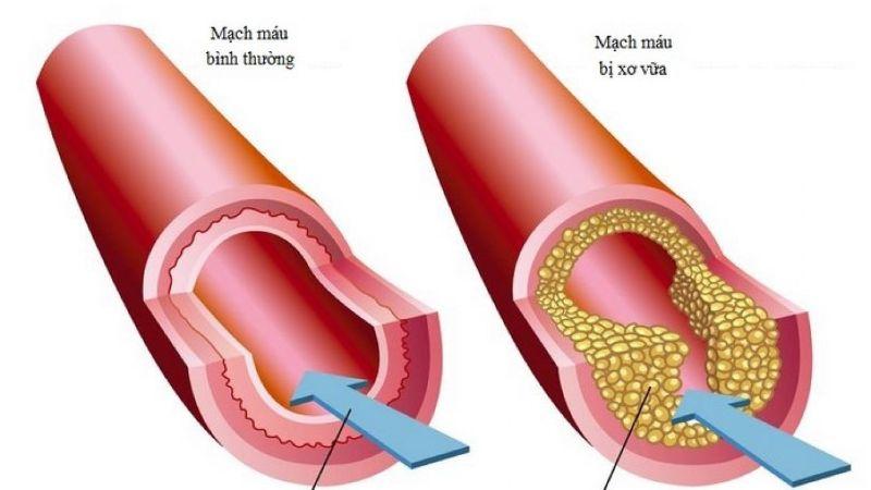 Nguyên nhân xơ vữa động mạch