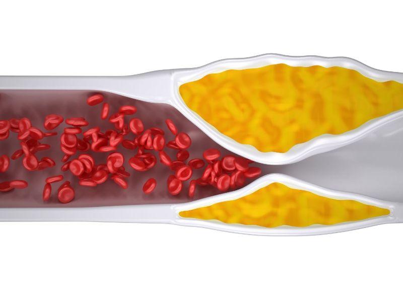 nguyên nhân tắc mạch máu