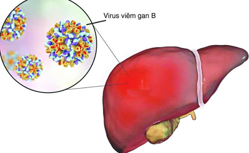 1.viem gan virus la nguyen nhan dan den suy giam chuc nang gan