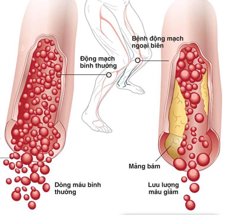 Nguyên nhân của bệnh tắc động mạch ngoại biên