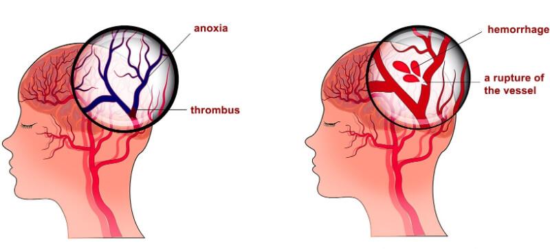 Cục máu đông gây ra tình trạng đột quỵ