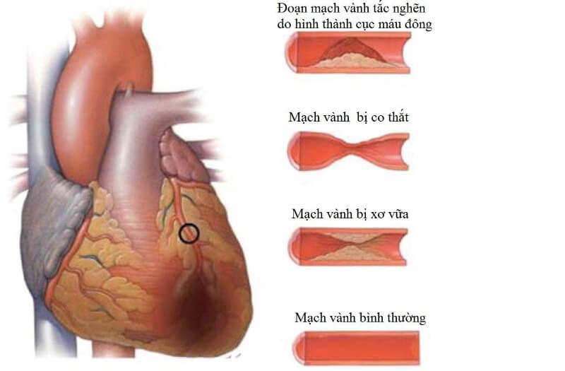 Thiếu máu cơ tim có nhiều nguyên nhân gây ra