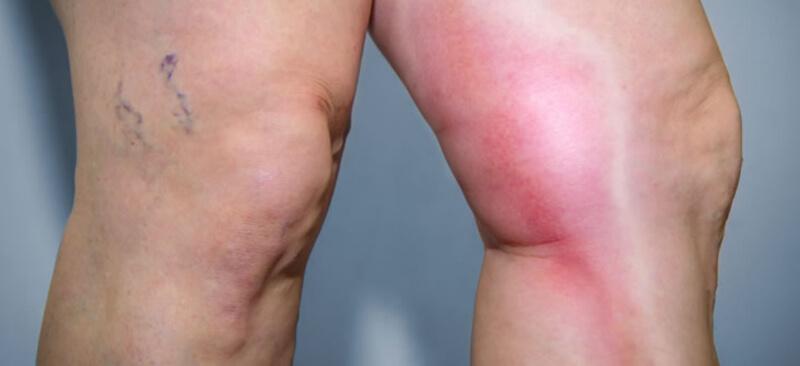 Huyết khối làm chân tay bị phù nề