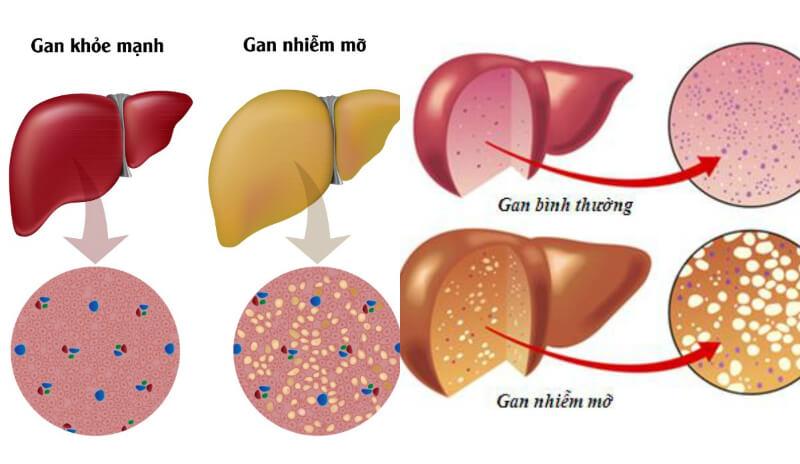 nhiễm mỡ làGancăn bệnh nguy hiểm, dễ gây biến chứng thành xơ gan