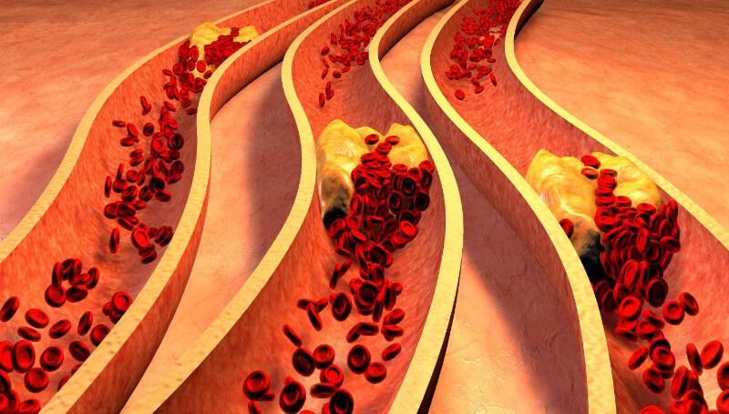 Điều trị mỡ máu sẽ làm tăng hiệu quả và đẩy lùi bệnh tiểu đường